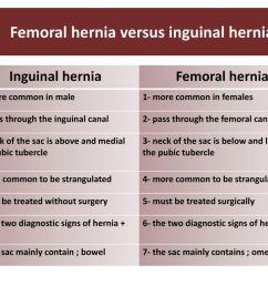 femoral hernia versus inguinal hernia [ 1024 x 768 Pixel ]