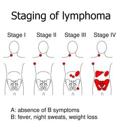 18 staging of lymphoma  [ 1024 x 768 Pixel ]