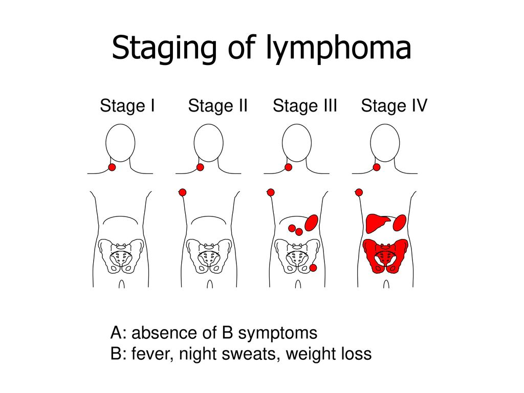 hight resolution of 18 staging of lymphoma