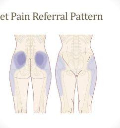 facet pain referral pattern [ 1024 x 768 Pixel ]