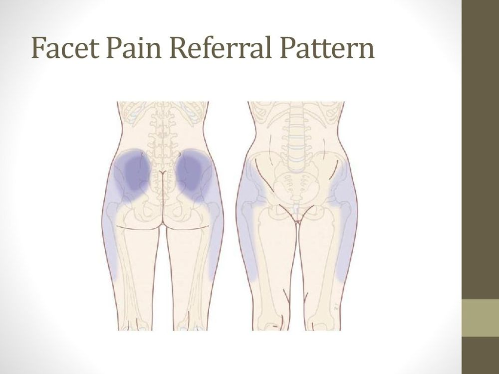 medium resolution of facet pain referral pattern