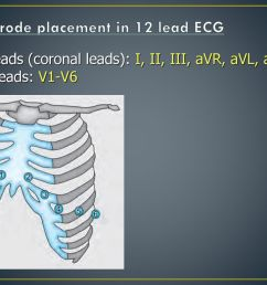 electrode placement in 12 lead ecg [ 1024 x 768 Pixel ]