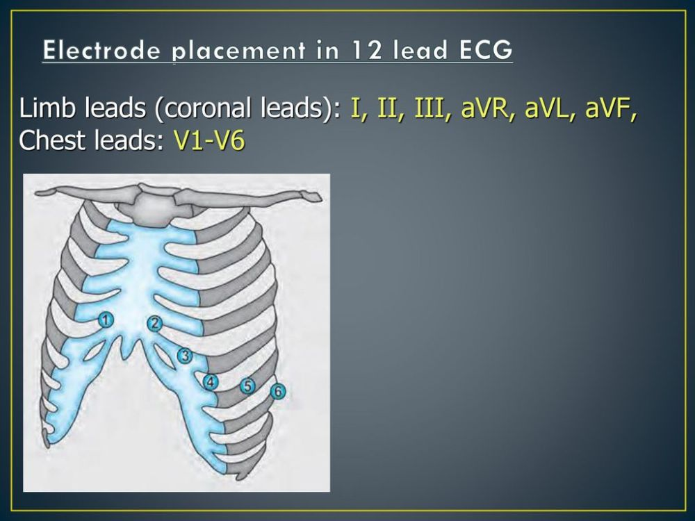 medium resolution of electrode placement in 12 lead ecg