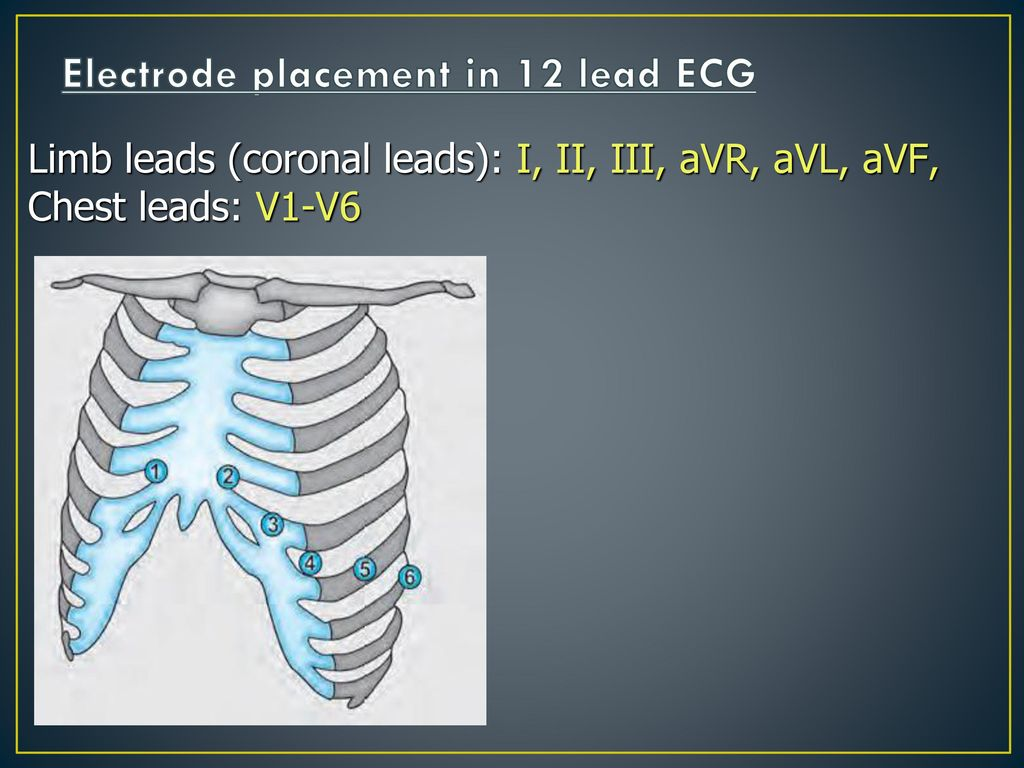 hight resolution of electrode placement in 12 lead ecg