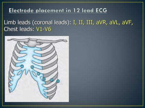 small resolution of electrode placement in 12 lead ecg