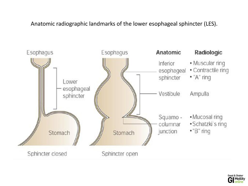 hight resolution of 3 anatomic radiographic landmarks of the lower esophageal sphincter les