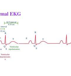 4 normal ekg r r p p t t q q s s  [ 1024 x 768 Pixel ]