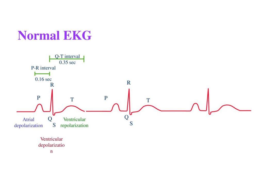 medium resolution of 4 normal ekg r r p p t t q q s s