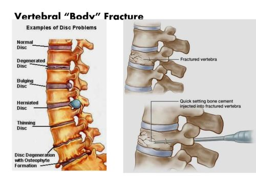 small resolution of 39 vertebral body fracture