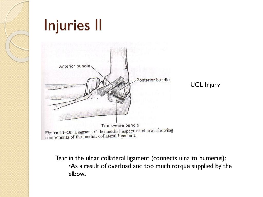 hight resolution of injuries ii ucl injury tear in the ulnar collateral ligament connects ulna to humerus