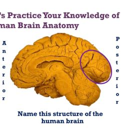 let s practice your knowledge of human brain anatomy [ 1024 x 768 Pixel ]