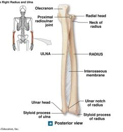 figure 8 5a the right radius and ulna [ 1024 x 768 Pixel ]