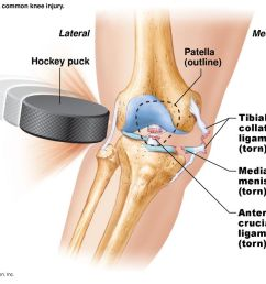 20 lateral medial hockey puck [ 1024 x 768 Pixel ]