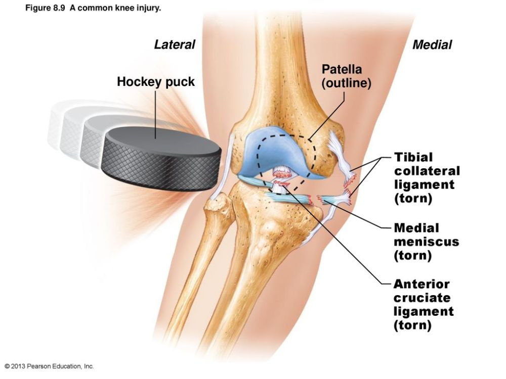 medium resolution of 20 lateral medial hockey puck