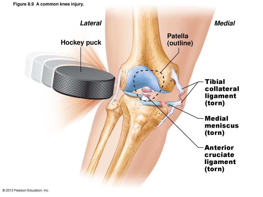 hight resolution of 20 lateral medial hockey puck