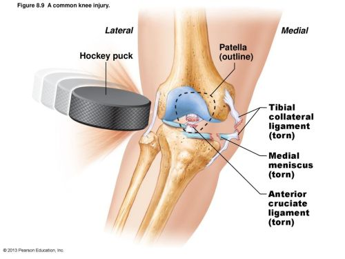 small resolution of 20 lateral medial hockey puck