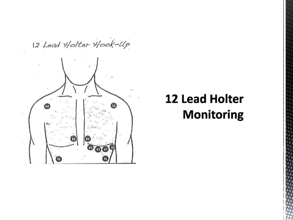 medium resolution of 12 lead hook up how do you wire a star delta motor