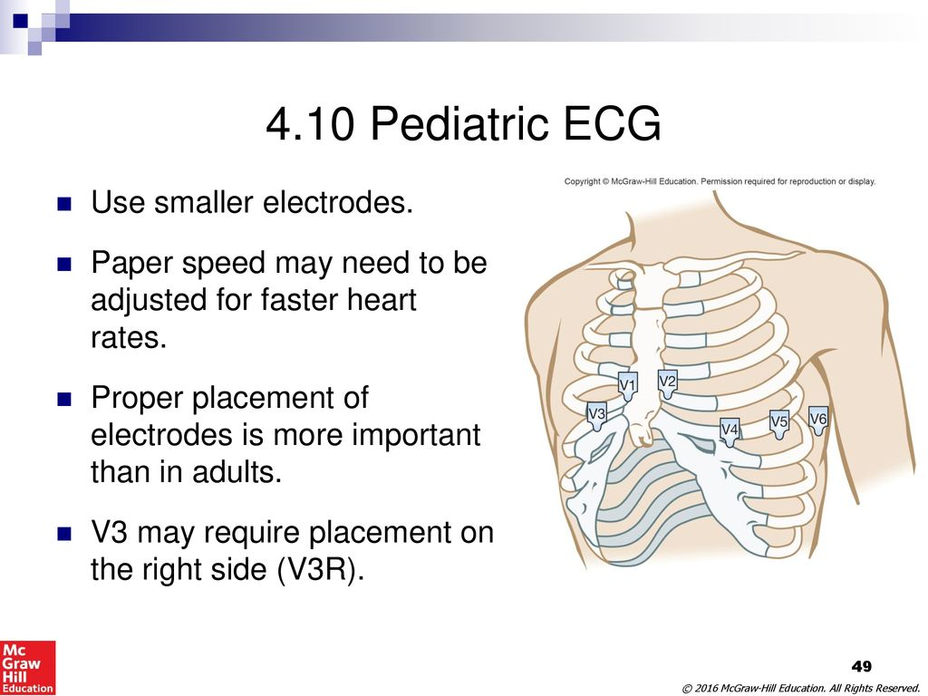 pediatric ekg lead placement diagram wiring for trailer hook up 12 imagenesmy
