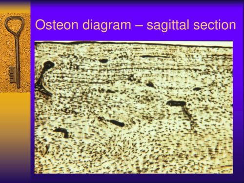 small resolution of 19 osteon diagram sagittal section