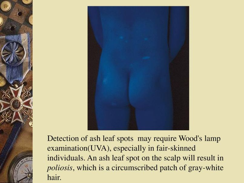 Ash Leaf Spots Wood S Lamp | Jidileaf co