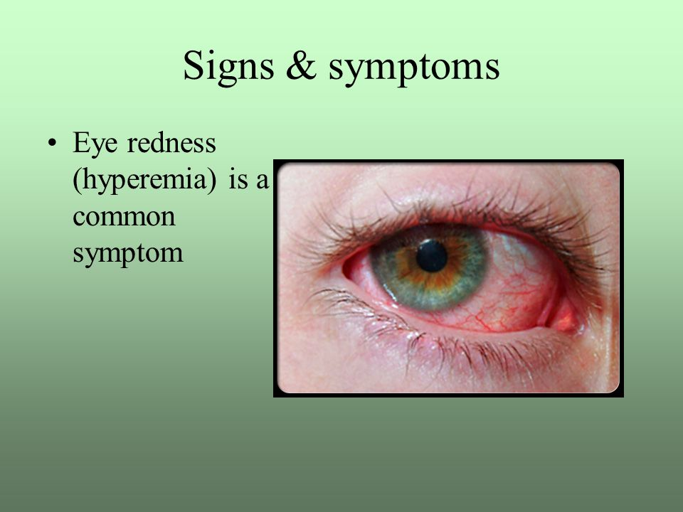 Conjunctivitis Madras eye Pink eye Eye flu - ppt video online download