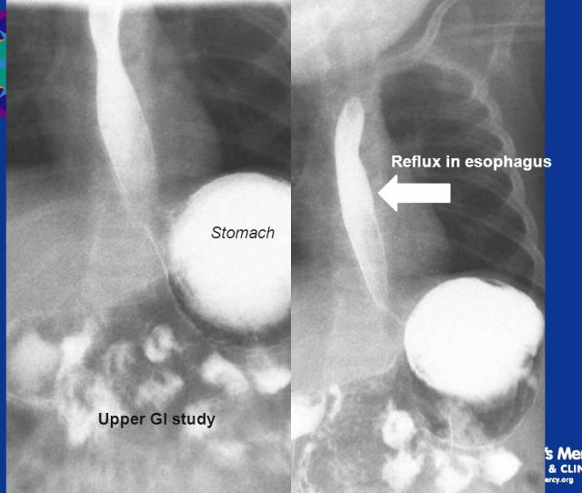 Reflux In Esophagus Stomach Upper Gi Study