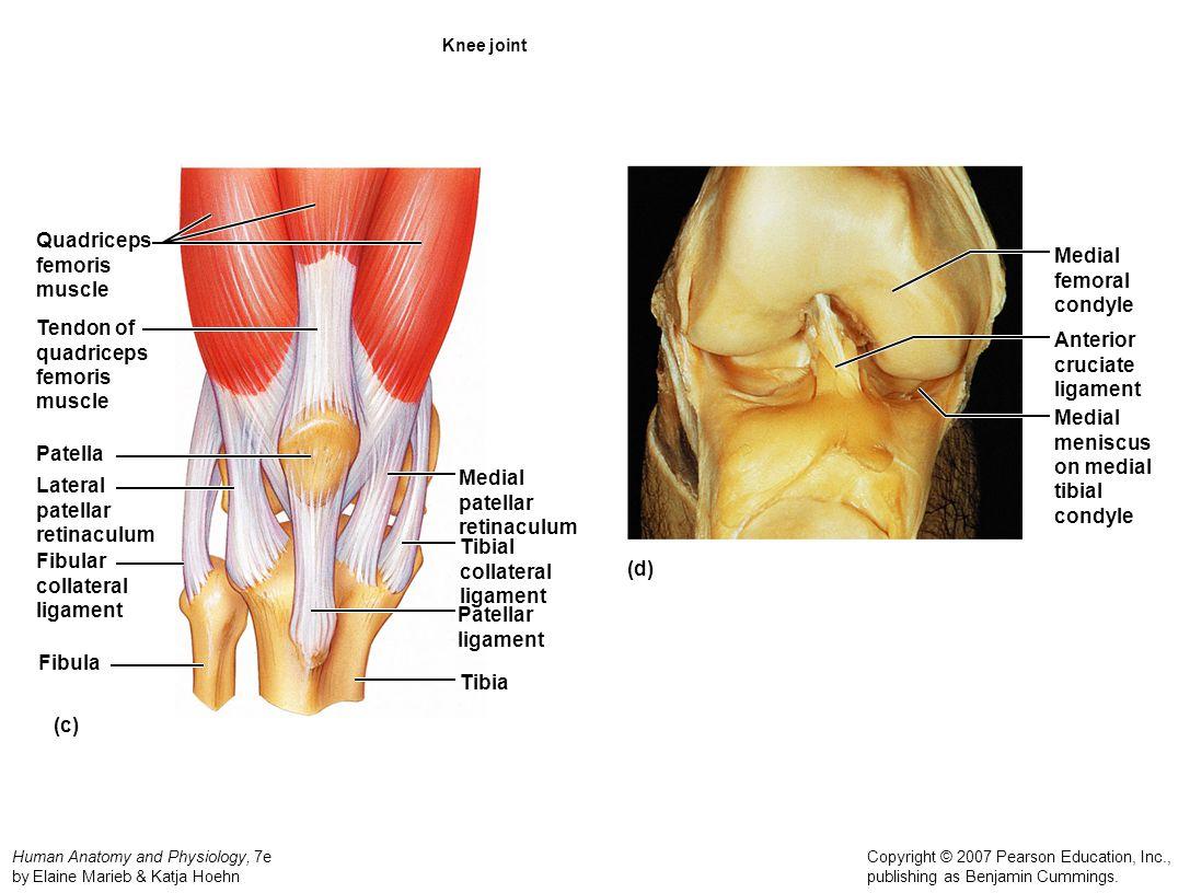 Medial Patellar Retinaculum Pain