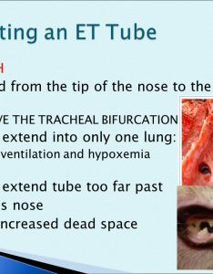 Selecting an et tube length also intubation of dogs and cats ppt video online download rh slideplayer