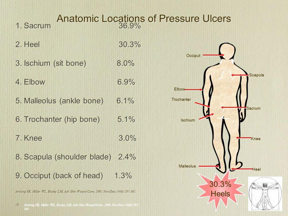 medium resolution of anatomic locations of pressure ulcers
