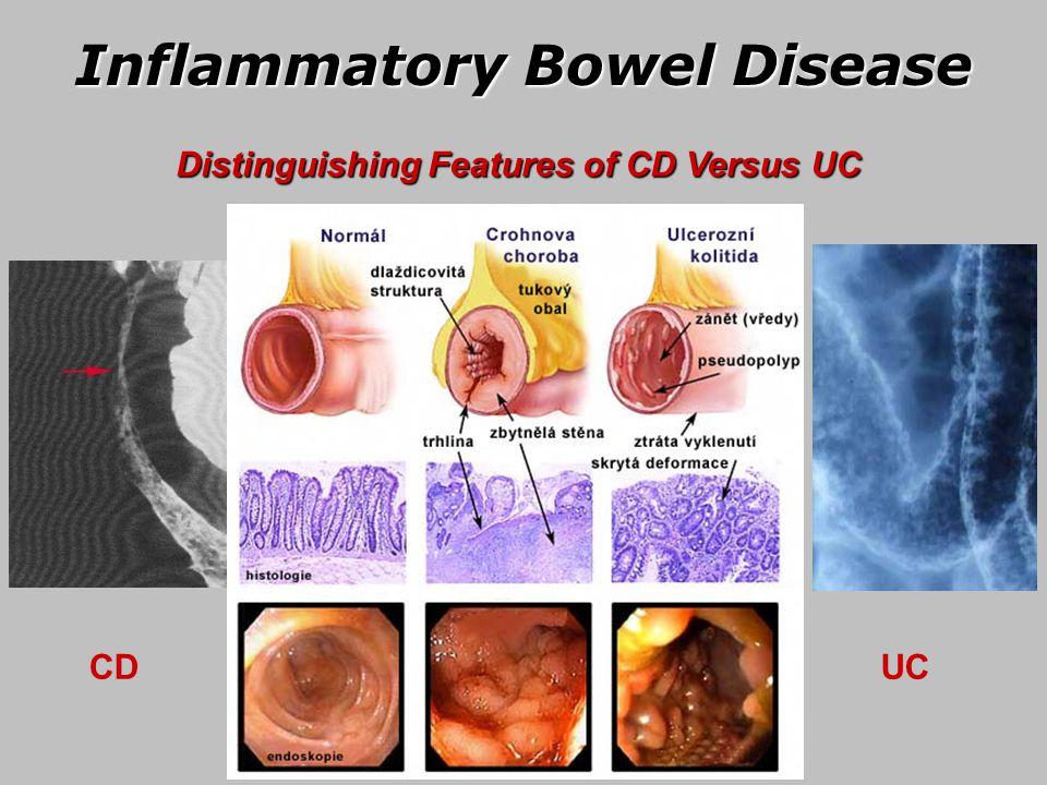 Irritable Colitis Bowel Crohn Disease Ulcerative And