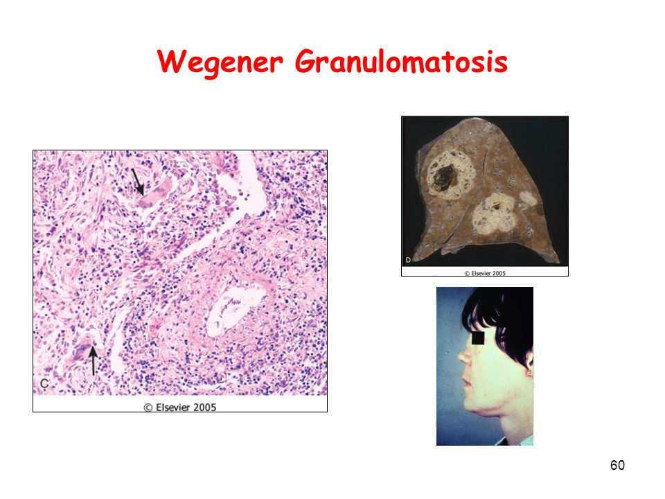 Vasculitis Means inflammation of the blood vessel wall