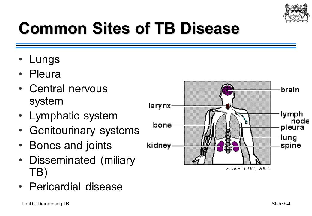 Unit 6: Diagnosing TB Botswana National Tuberculosis