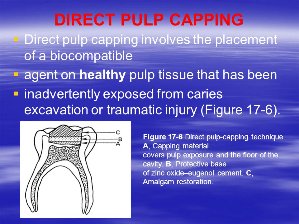 Pulpal Therapy For Primary And Young Teeth Devitalizing Agents Non Vital Methods Of Root Canal