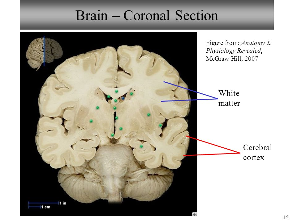 sheep brain superior view diagram wiring for car audio capacitor neuron/spinal cord histology anatomy dissection - ppt video online download