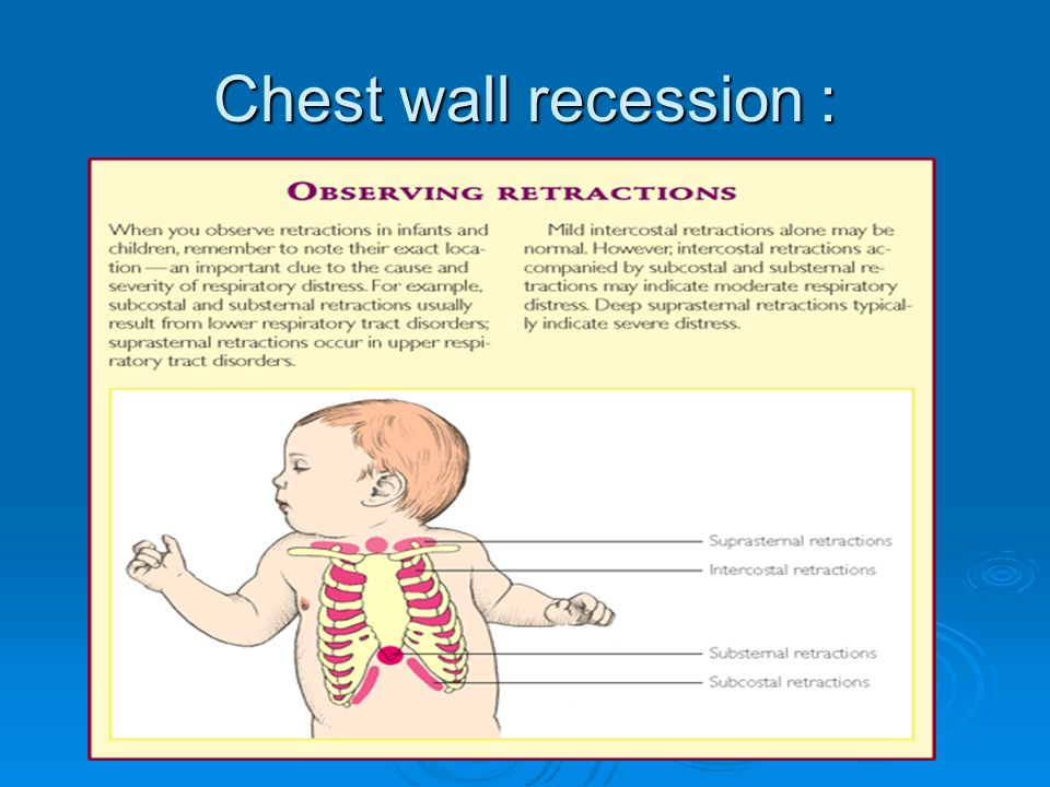 General Paediatric Assessment  ppt video online download