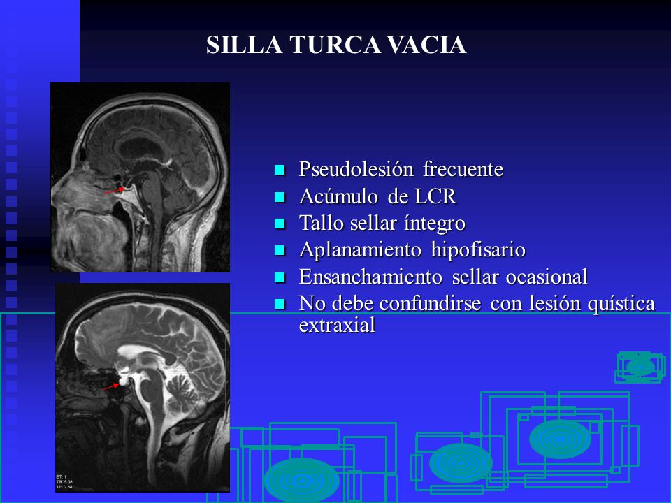 PSEUDOLESIONES EN NEUROIMAGEN  ppt video online descargar