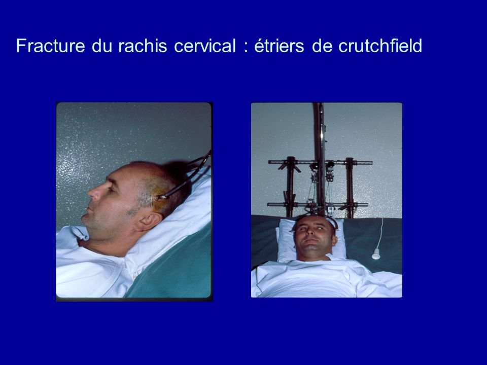 Extension Traction Cervical