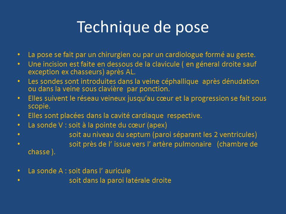 PACE MAKER ET DEFIBRILLATEUR implantable  ppt video online tlcharger