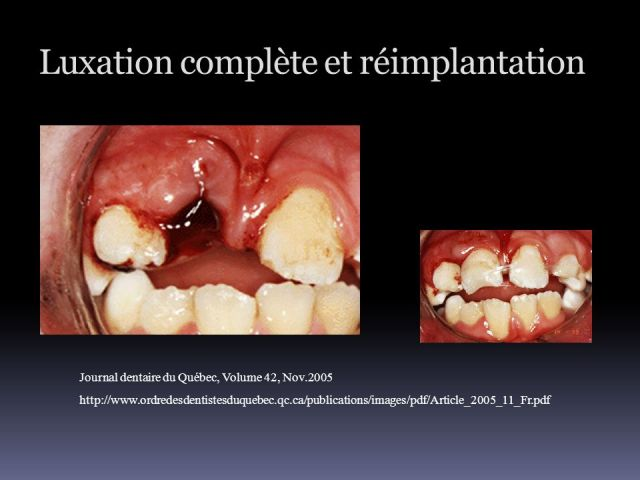 """Résultat de recherche d'images pour """"réimplantation d'une dent après luxation totale"""""""