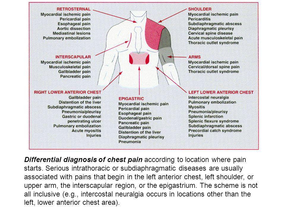 Cardiopatia Ischemica  ppt scaricare