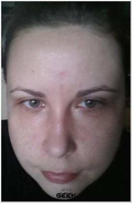 Przed zabiegiem - bez makijazu