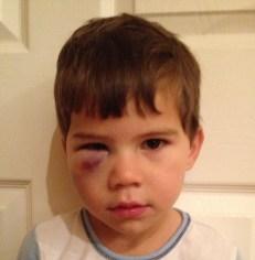 Toby black eye