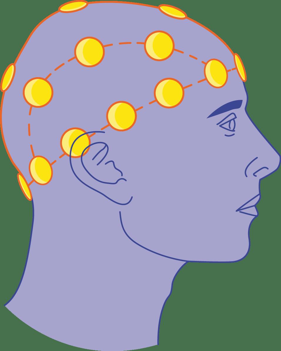 EEG - Electrods - Servier Medical Art - 3000 free medical images