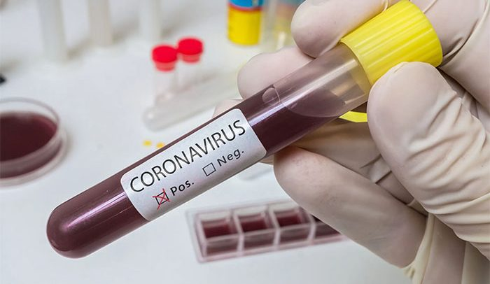 Ghana records 73 new  cases of Covid-19, total count rise to 287
