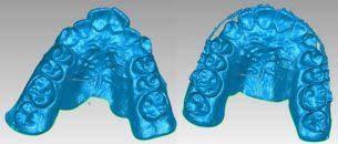 Quét 3D trong Nha khoa và Chỉnh hình 4