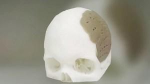 Xương hộp sọ được tạo bởi dịch vụ in 3D