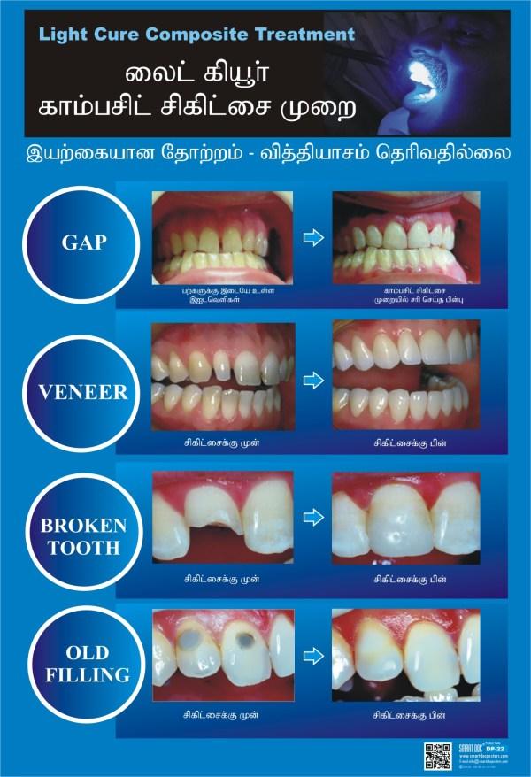 Composite Fillings Tamil Dp-22-t Smart Doc Posters