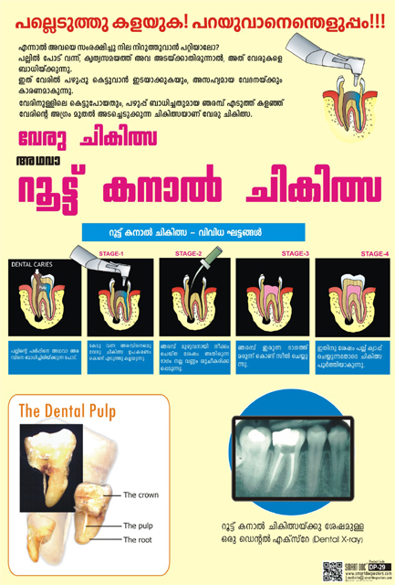 Root canal treatment Malayalam DP29M  Smart Doc Posters