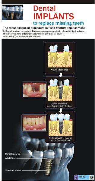 Dental implants Eng LDP02  Smart Doc Posters