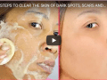 Healthy steps to get rid of black spots from your face and skin